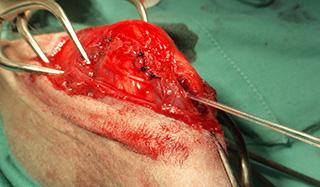 脛骨内旋制御術
